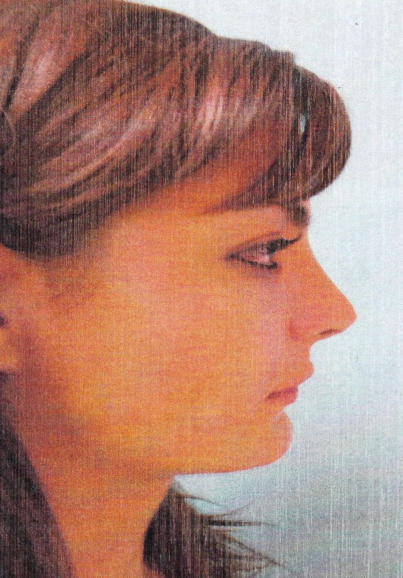 пластическая клиника увеличение груди
